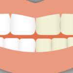 Cosmetic dental procedures, like cosmetic make-up, exist to change the way the mouth looks. Learn more about what classifies a dental procedure as cosmetic.