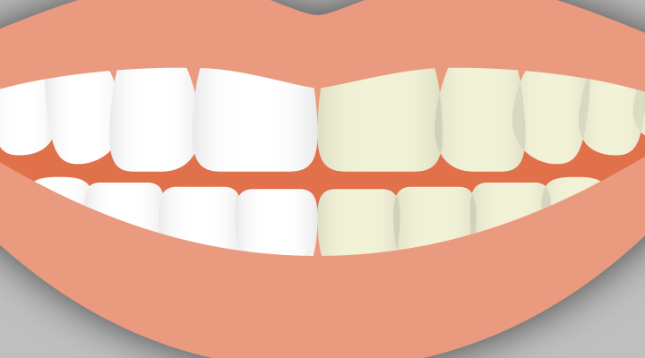 Cosmetic Dental Procedures Classified: What Cosmetic Dentistry Means for Your Insurance